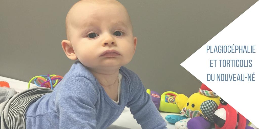 La plagiocéphalie et le torticolis du nouveau-né